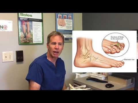 Capsulitis (Inflammation of Second Metatarsal) -- Information, Treatment Options