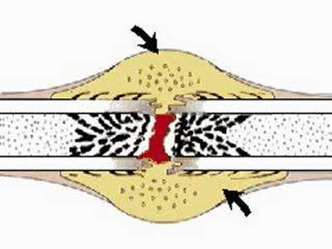 How the Body Works : Repair of Bone