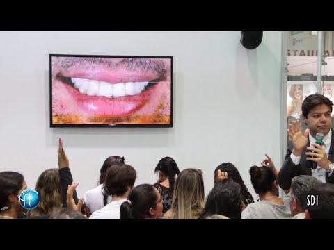 """REABILITAÇÃO ESTÉTICA DO SORRISO COM RESTAURAÇÕES CERÂMICAS E RESINAS COMPOSTAS """"ETAPAS CLÍNICAS"""""""