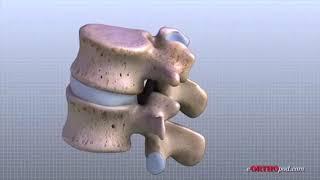 Lumbar Spine Anatomy
