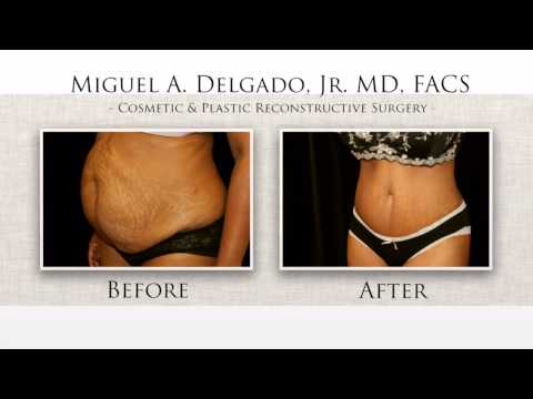 LIVE SURGERY   Brazilian Butt Lift (BBL)  Tummy Tuck  Part 5 of 5  Before and After Photos