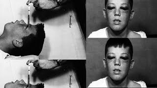 Creepy Before And After Pictures Of People Who Underwent Lobotomies