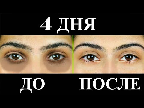 Как удалить ТЕМНЫЕ КРУГИ естественным путем за 4 ДНЯ? Уход за кожей вокруг глаз