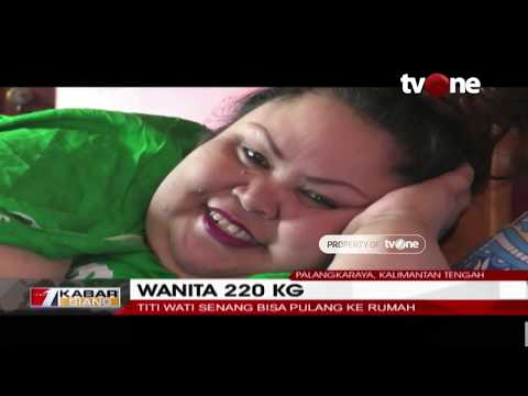 Pasca-operasi, Wanita 220 KG Titi Wati Sudah Pulang ke Rumah