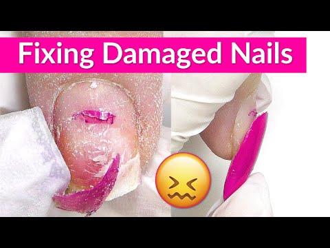 Damaged Nails Transformation W/ Apres Gel X