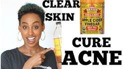 hqdefault - Apple Cider Vinegar For Acne Drink