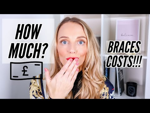 HOW MUCH DO LINGUAL BRACES COST? CLEANING ROUTINE & 8 MONTH UPDATE