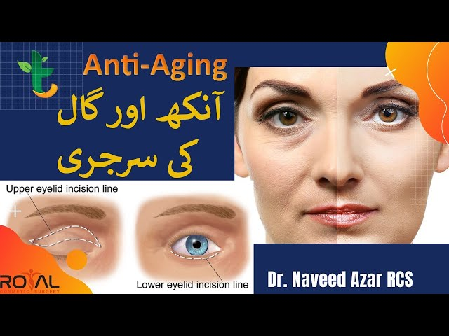Eyelid Surgery , Mid Face Lift & Anti Aging Explained By Dr. Naveed Azhar in Urdu - Tabib.pk