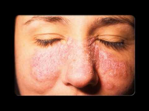 El tratamiento por las sanguijuelas a neyrodermite