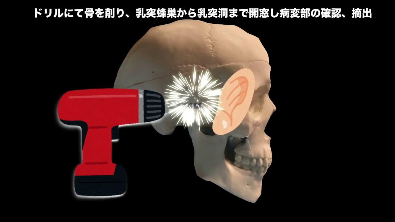 備忘録:右中耳真珠腫の手術につ...