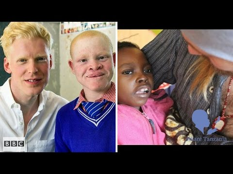 Born too white BBC doc... My thoughts as a man who protects children daily from witch doctors...