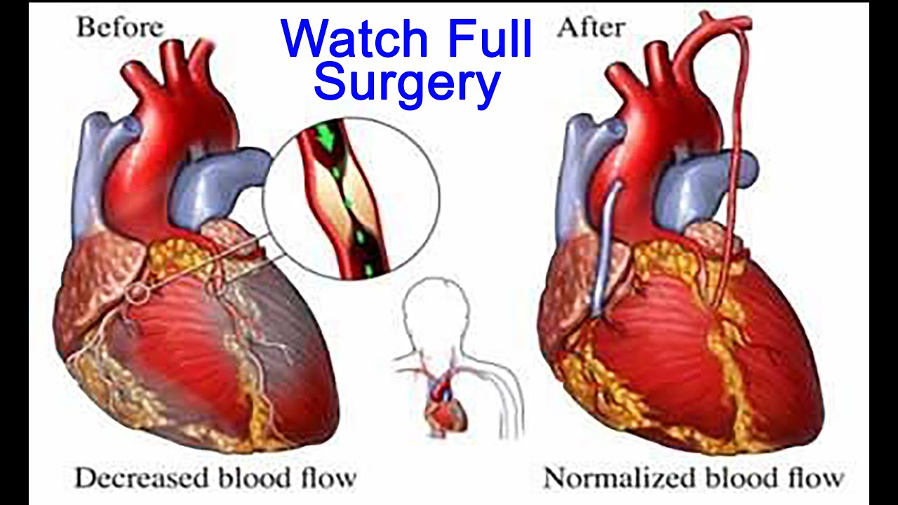 Diagram Of A Heart Bypass Graft Xbox 360 Headset Wiring Minimally Invasive Coronary Artery Surgery Micas By Dr
