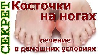 видео Косточка на большом пальце ноги – причины дискомфорта