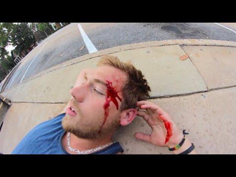 My Worst Skateboarding Fall Ever