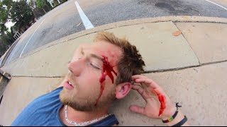 My Worst Skateboarding Fall Ever