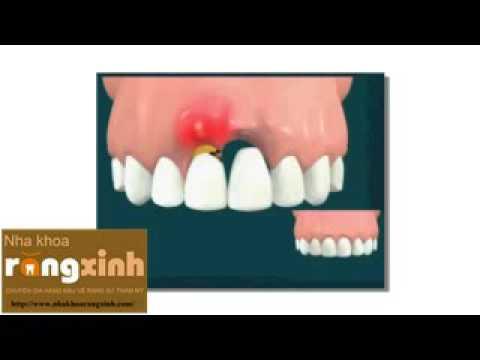 Trồng răng sứ trên răng cấy ghép Implant