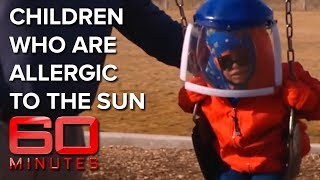 Children of the night: young kids allergic to the sun | 60 Minutes Australia