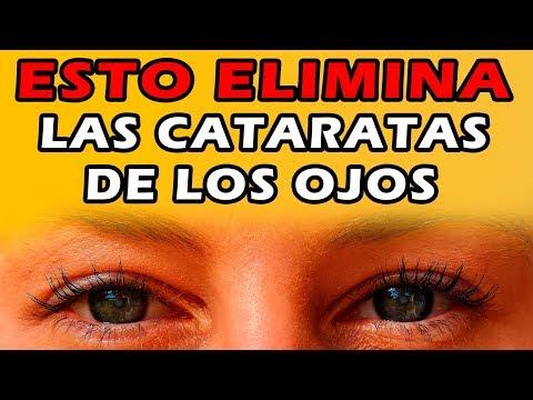 cataratas-en-los-ojos-:-esto-previene-y-elimina-las-cataratas-de-los-ojos