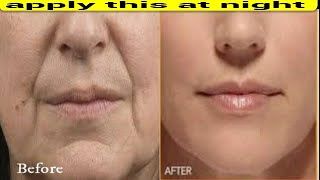 APPLY THIS AT NIGHT REMOVE DEEP MOUTH WRINKLES NEXT DAY