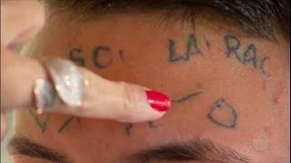 Exclusivo: veja como está o jovem que teve a testa tatuada ao tentar furtar bicicleta
