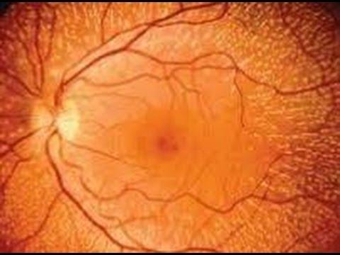 Síntomas serosos de desprendimiento de retina hipertensión