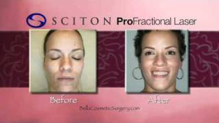 What is Maryland Laser Resurfacing? How Can It Help My Skin? Thumbnail