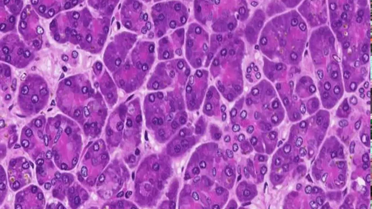 Histology Of The Pancreas Endocrine And Exocrine Youtube