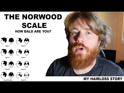 THE NORWOOD SCALE - How Bald Are You?  My Balding/Hairloss Story