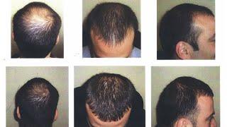 How to Stop Hair Loss in Hindi