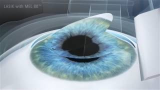 Conventional Lasik