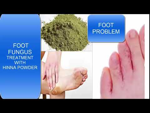 FOOT FUNGUS/FOOT PROBLEM/paeo ki sojen or kharab ka ilaj/swollen foot/hina powder and foot swollen