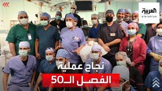 إنجاز آخر للطب السعودي.. نجاح عملية فصل التوأم الطفيلي اليمني في الرياض