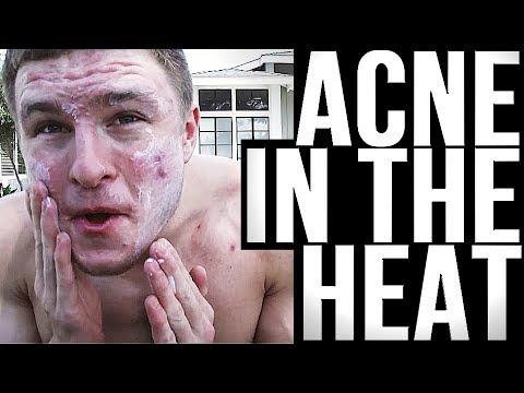 hqdefault - Pimples Caused By Sunburn