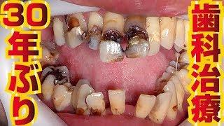 【口腔崩壊】30年ぶりの歯科治療 Dental treatment for the first time in 30 years 【 dentistry】(時隔30年的齒科治療)