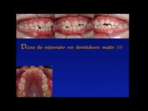 Expansão maxilar na dentadura mista - Prof. Dr. Pedro Andrade Jr.