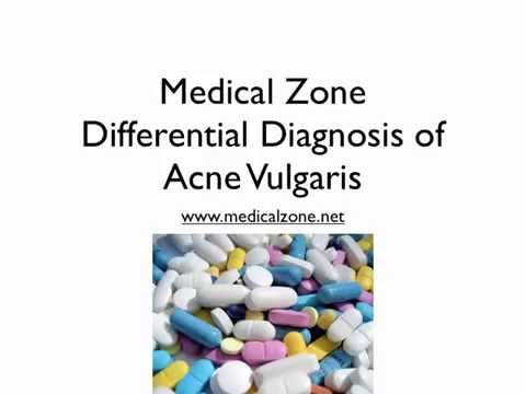 hqdefault - Differential Diagnosis For Acne Vulgaris
