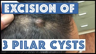 Another scalp with Three Pilar Cysts