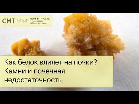 Диета при камнях в желчном пузыре - питание и рецепты