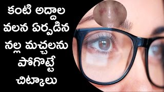 కంటి కింద నల్ల మచ్చలతో విసిగిపోయారా...ఇలా చేయండి Telugu Health Tips for glass under black marks
