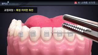 A1 치아 교정용 브라켓 특정 치아 회전 교정과정