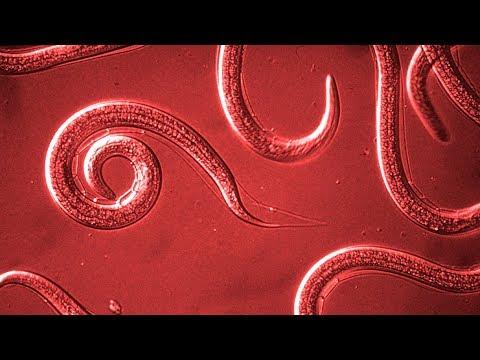 Гельминтозы человека. Вопросы и ответы