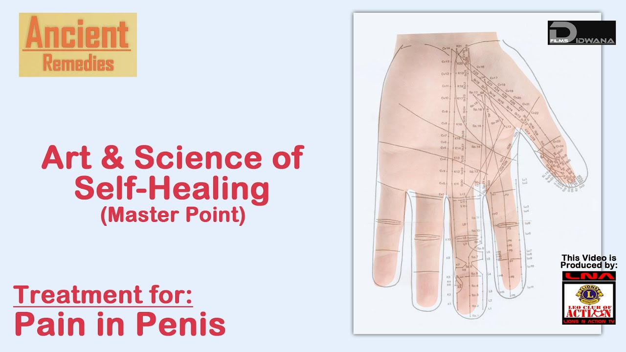 ancient remedies: treatment for pain in penis | art & science of, Skeleton