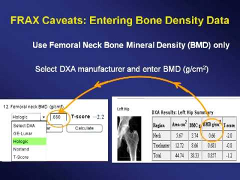 Identifying Women Who Need Osteoporosis Therapy Update on Fracture Risk Assessment