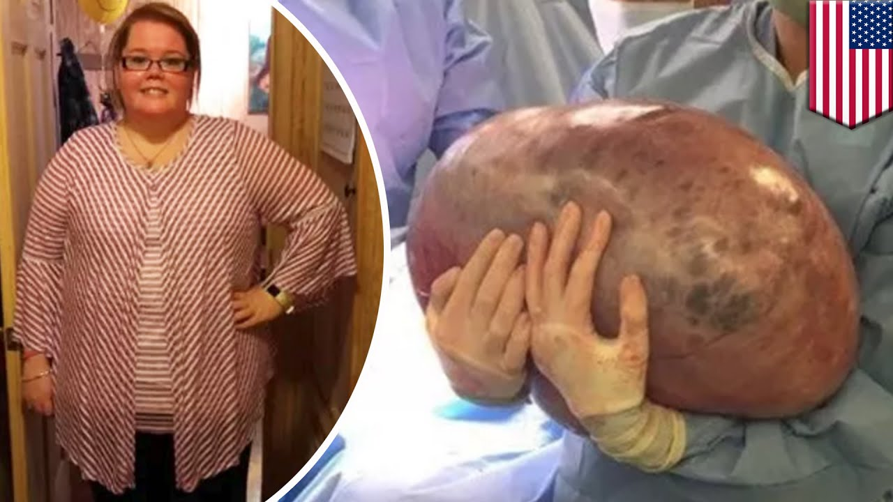 giant 50 pound cyst removed from alabama woman s ovary tomonews