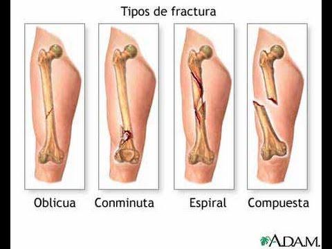 Rehabilitacion Fractura de femur - YouTube