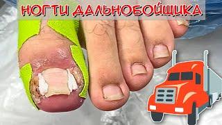 Вросший ноготь на большом пальце ноги Дальнобойщик