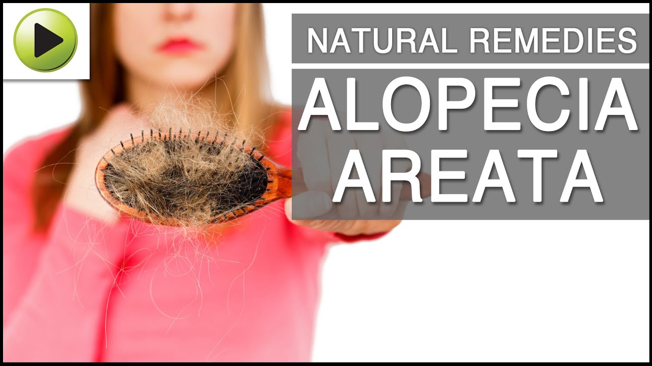 natural home remedies for alopecia areata - youtube