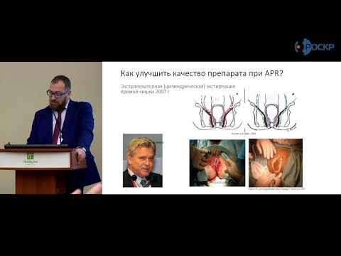 И.Л.Черниковский: Принципы хирургического лечения рака прямой кишки. Ключевые события года.