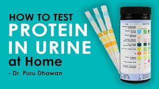How to Test Protein in Urine at Home