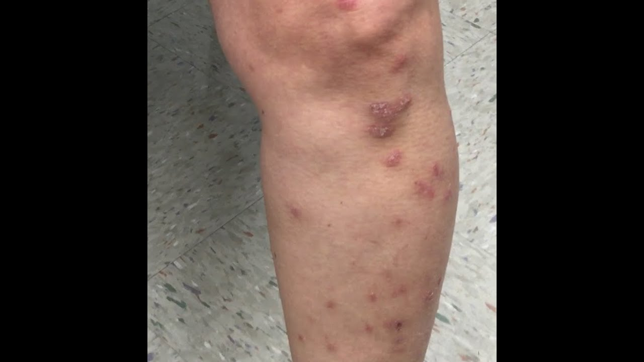 Sandra that she was suffering from a condition called guttate psoriasis 2